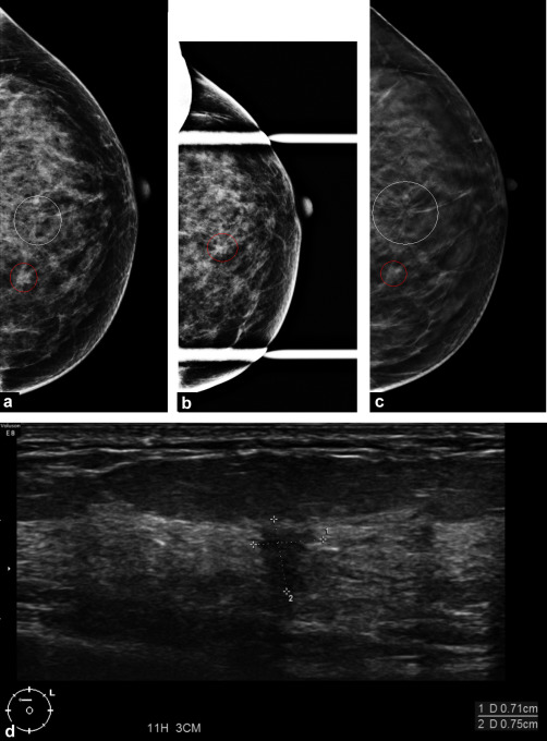 tomosynthesis diagnostic mammography