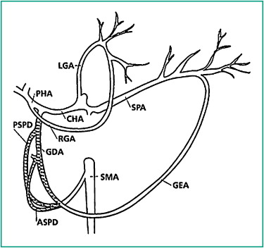 Transcatheter arterial embolization for acute nonvariceal upper ...