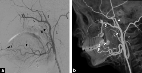 Epistaxis: The role of arterial embolization - ScienceDirect