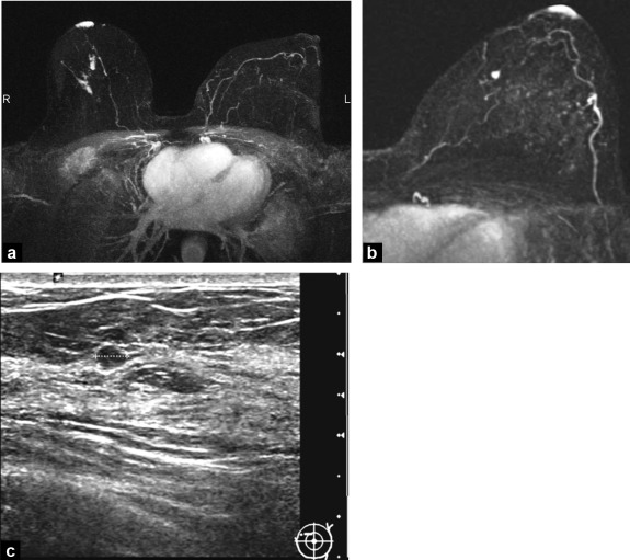 Clinical abnormalities of the nipple-areola complex: The