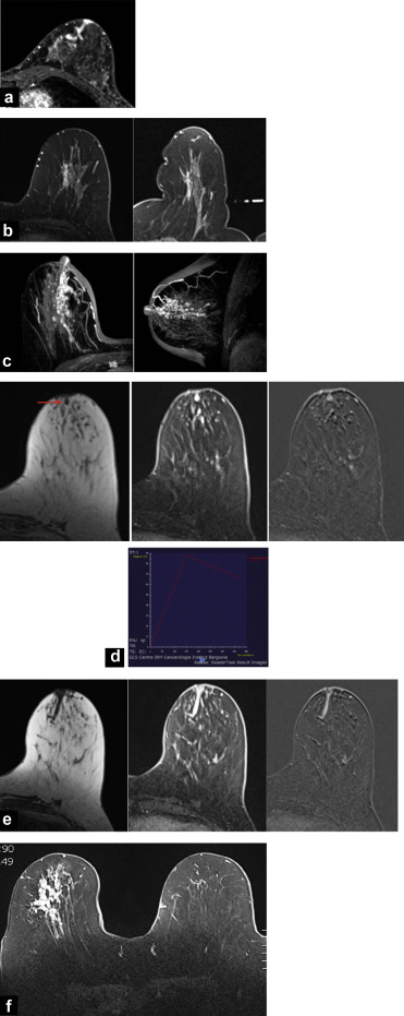 Nipple discharge: The role of imaging - ScienceDirect
