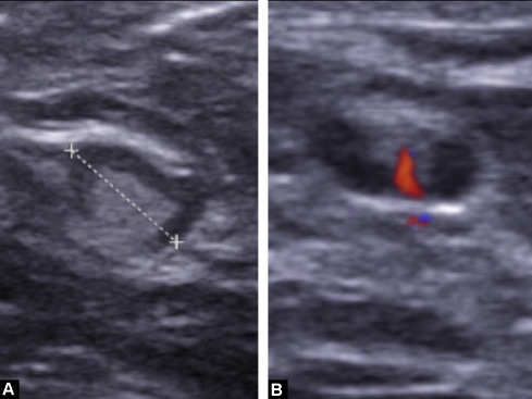 Diagnostic strategy for the assessment of axillary lymph node status ...