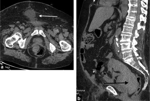 Postoperative Pelvic Pain An Imaging Approach Sciencedirect