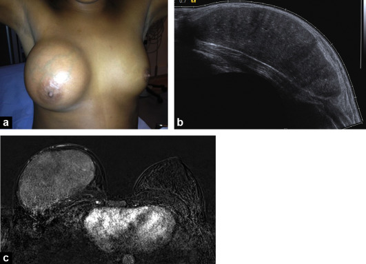 Breast Pain And Imaging Sciencedirect