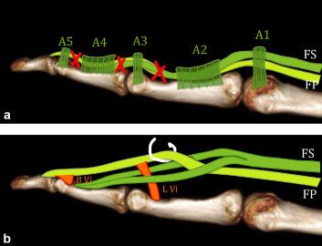 Traumatic flexor tendon injuries - ScienceDirect
