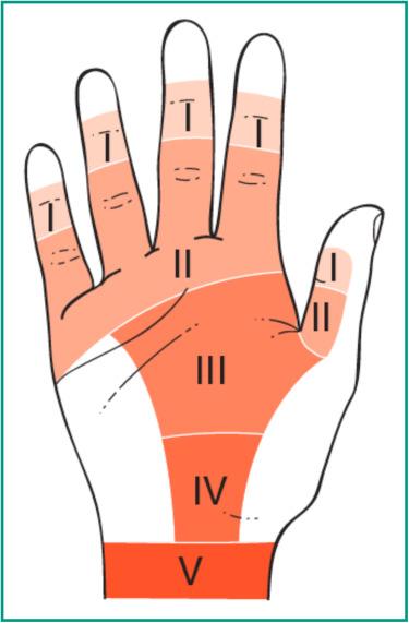 traumatic flexor tendon injuries sciencedirect