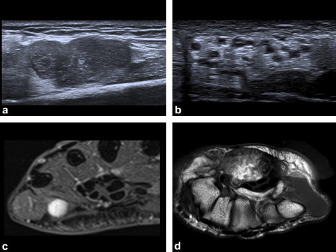 Tumors and pseudotumors of the hand: The role of imaging