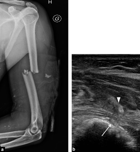 Entrapment and traumatic neuropathies of the elbow and hand