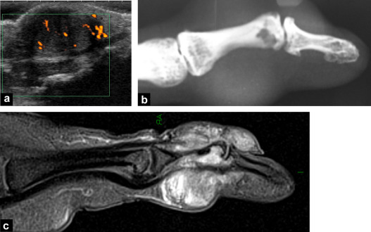 Ultrasound of wrist and hand masses - ScienceDirect