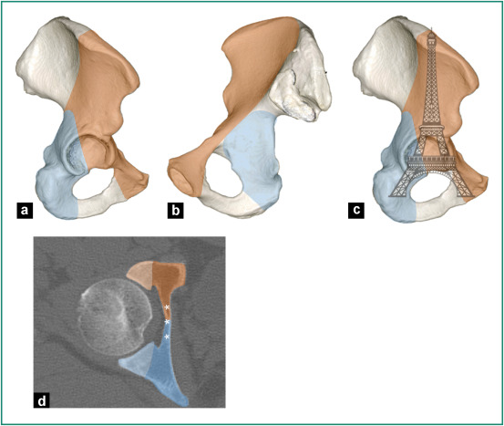 Pelvic Acetabular And Hip Fractures What The Surgeon Should Expect