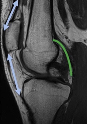Imaging of tumors and tumor like lesions of the knee sciencedirect anatomy of the knee joint limited anteriorly by the extensor system blue arrows laterally by the lateral and medial ligaments and posteriorly by the ccuart Images