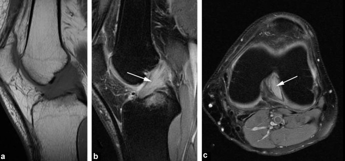 Imaging of meniscus and ligament injuries of the knee
