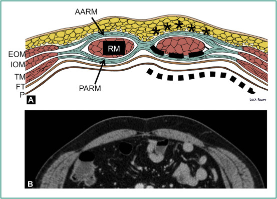 CT findings of complications after abdominal wall repair with