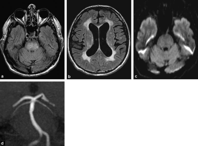 encephalopathy ischemique anoxique pdf