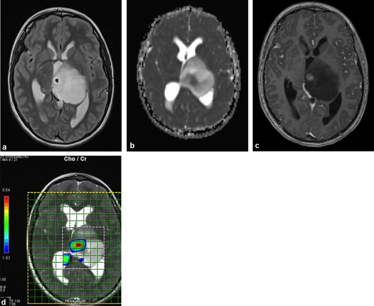Tumeurs Cerebrales Particularites Chez L Enfant Sciencedirect