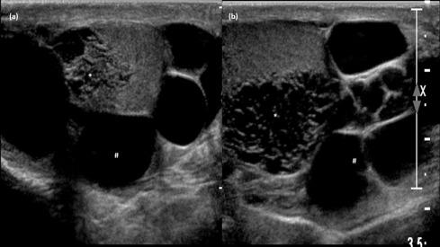 Tubular ectasia of rete testis – A diagnostic dilemma - ScienceDirect