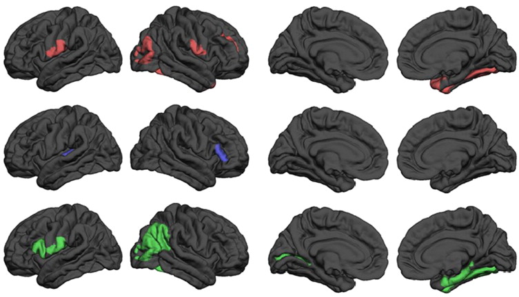 Regional grey matter differences. Automatically measured morphometric  statistics were obtained and compared in groupwise t-tests between  dyscalculics and ...