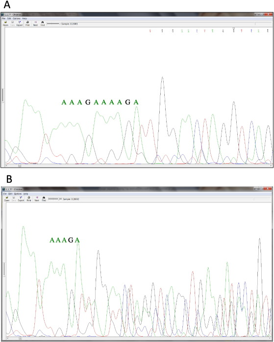 Highly Sensitive Non Invasive Detection Of Colorectal Cancer Mutations Using Single Molecule Third Generation Sequencing Sciencedirect