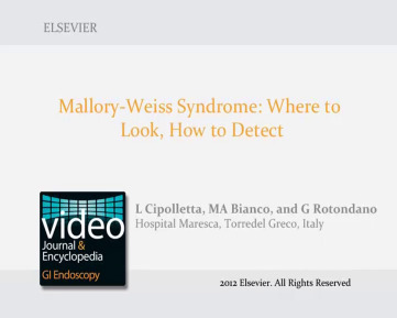 Mallory–Weiss Syndrome: Where to Look, How to Detect