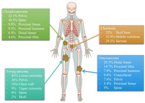 Advances in immune checkpoint inhibitors for bone sarcoma