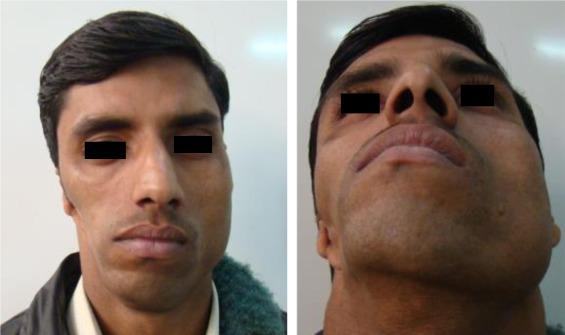 hemi facial microsomia