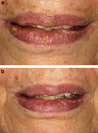 Characterization and management of exfoliative cheilitis: a