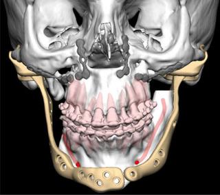 Temporomandibular Joint Total Replacement Using The Zimmer Biomet