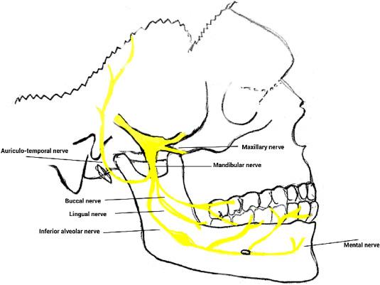 Extraoral Mandibular Nerve Block With Peripheral Nerve Stimulator