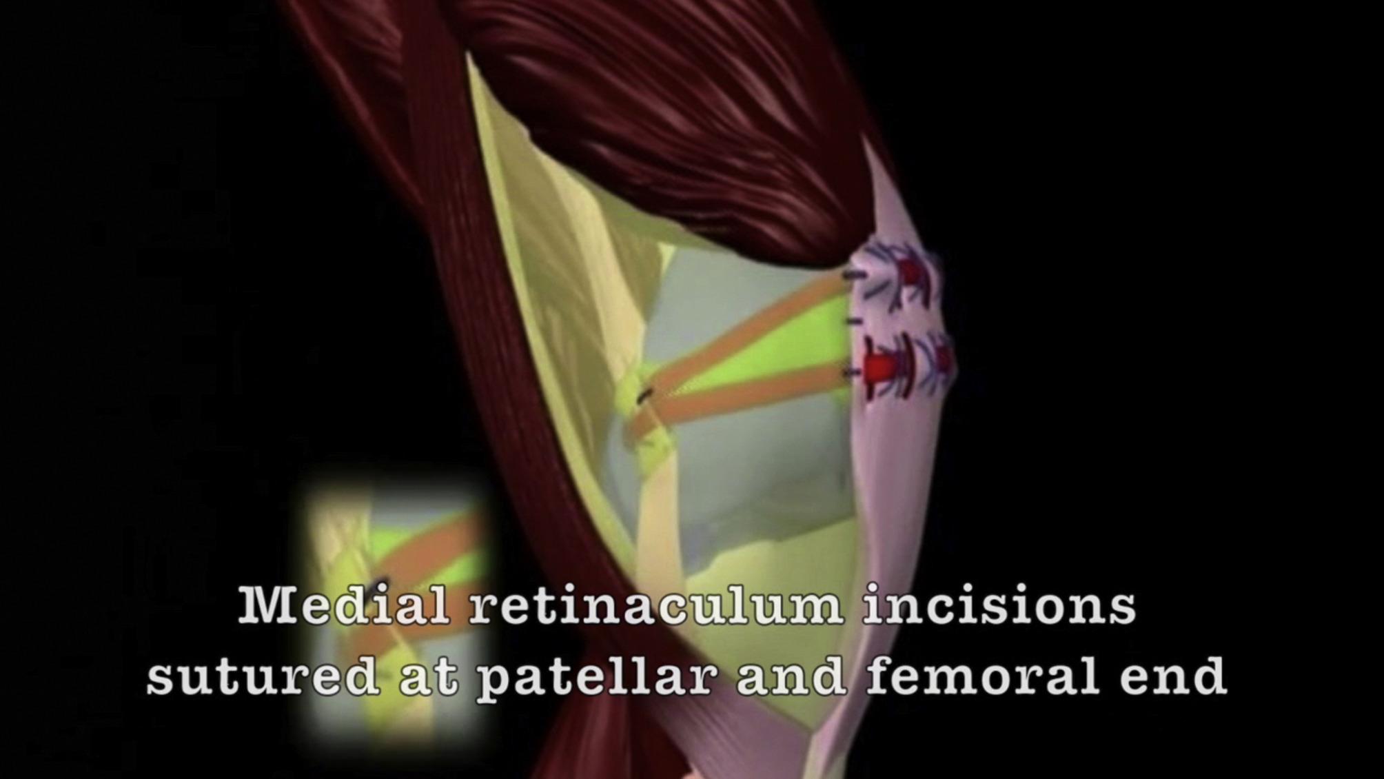Medial Patellar Retinaculum Injury Topsimages