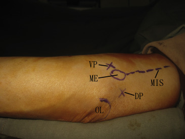 Endoscopic Anterior Subcutaneous Transposition of the Ulnar Nerve