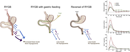 Roux en Y gastric bypass hypoglycemia resolves with gastric
