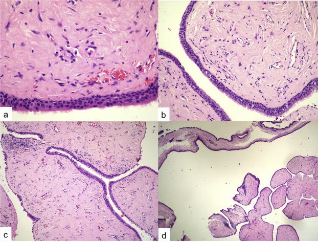 fibroepithelial papillomas