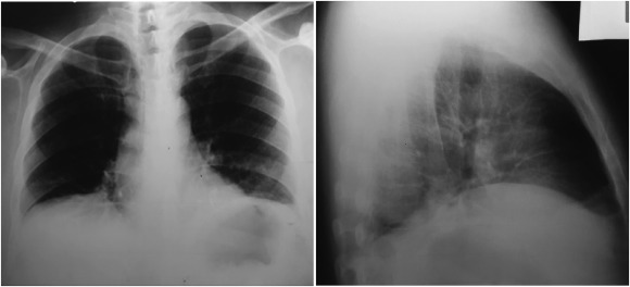 Bilateral diaphragmatic paralysis after an unusual physical