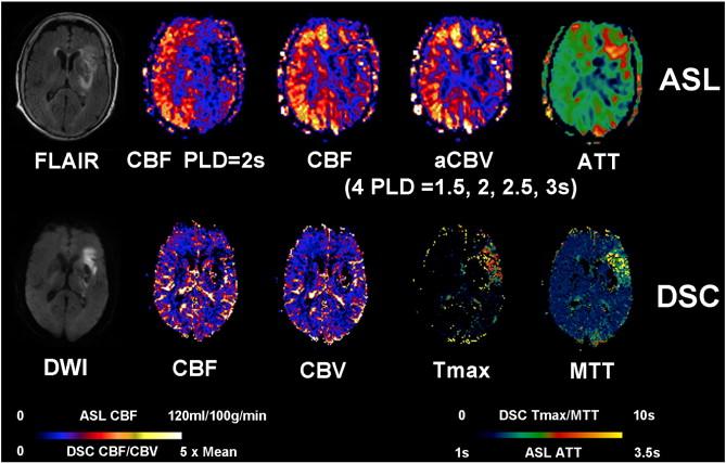 Multi-delay multi-parametric arterial spin-labeled perfusion MRI in