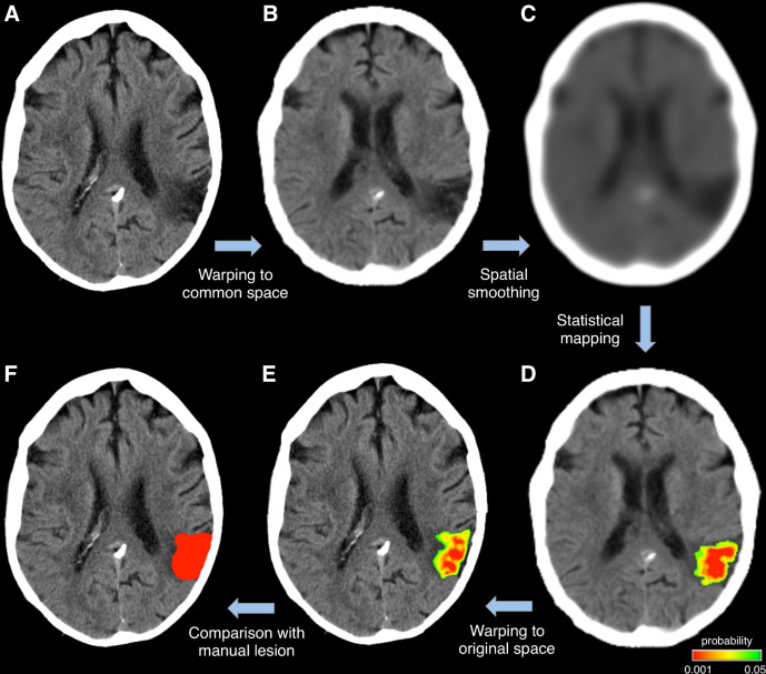 Automated Delineation Of Stroke Lesions Using Brain Ct Images