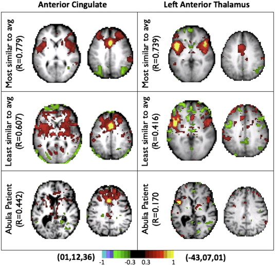 The Circuitry Of Abulia Insights From Functional Connectivity Mri Sciencedirect