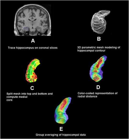 Associations Between Hippocampal Morphometry And Neuropathologic