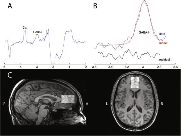 Adhd Drugs Increase Brain Glutamate >> Age Dependent Lasting Effects Of Methylphenidate On The Gabaergic
