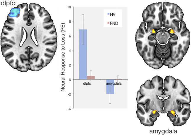 Disrupted avoidance learning in functional neurological disorder