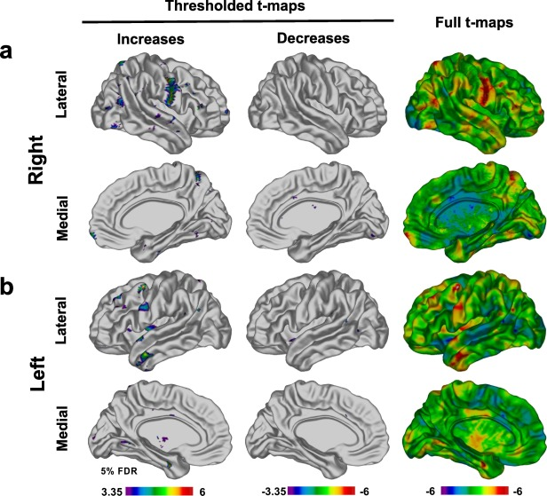 Repairing The Brain With Physical Exercise Cortical Thickness And