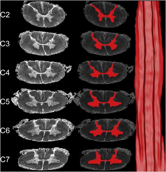 Postmortem diffusion MRI of the entire human spinal cord at