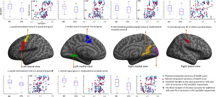 Brain function characteristics of chronic fatigue syndrome