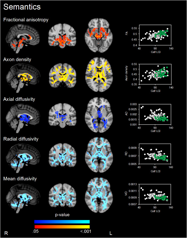 White matter microstructure is associated with language in