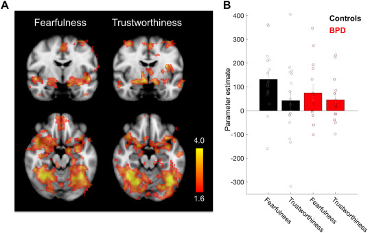 Trustworthiness appraisal deficits in borderline personality