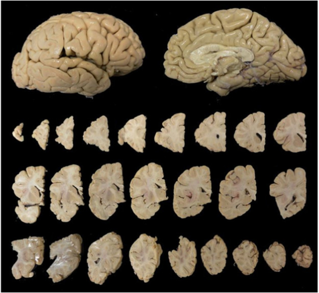 Five Ways In Which Postmortem Brain >> Normal Aging Brain Collection Amsterdam Nabca A Comprehensive