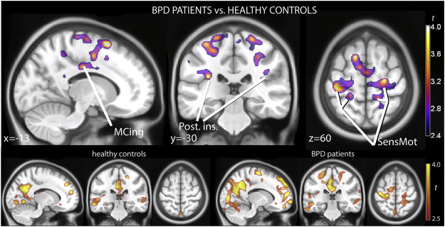 Mirror neuron activations in encoding of psychic pain in