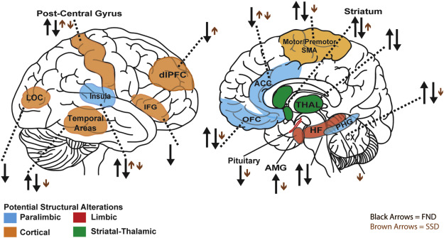 Structural alterations in functional neurological disorder