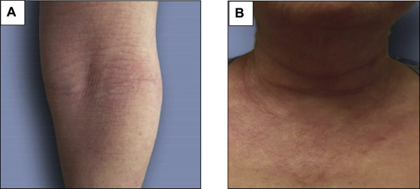 Update on Atopic Dermatitis: Diagnosis, Severity Assessment