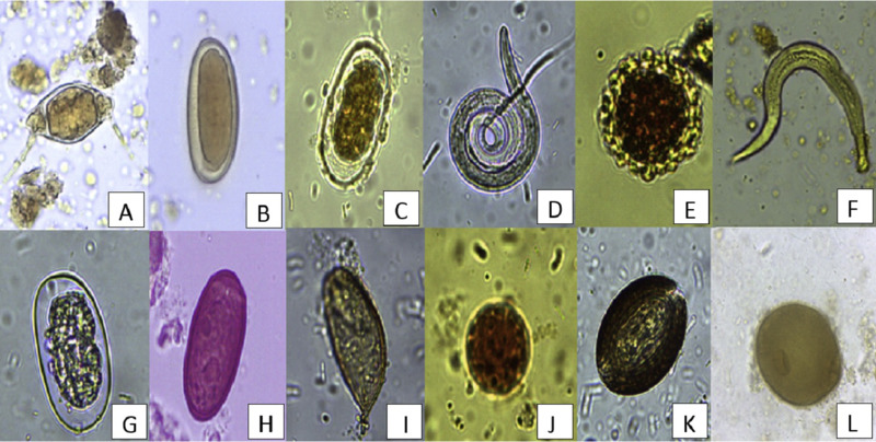 Seasonality, richness and prevalence of intestinal parasites of