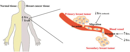 The thioredoxin system in breast cancer cell invasion and